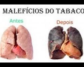 Sem cigarros com saúde !